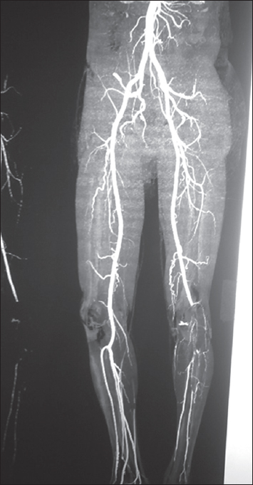 Figure 6: Preoperative computed tomography angiogram shows popliteal artery block