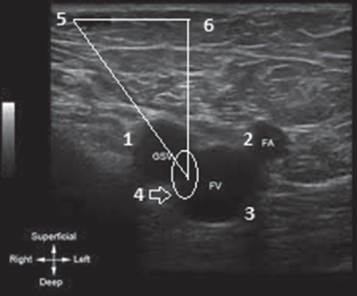 Figure 1: Left side pubic tubercle to saphenofemoral junction - lateral and inferior distance on duplex ultrasound imaging. Description - 1: Great saphenous vein, 2: Femoral artery, 3: Femoral vein, 4: Center of saphenofemoral junction, and 5: Pubic tubercle (lateral distance: 4.1 cm, inferior distance: 3.2 cm)