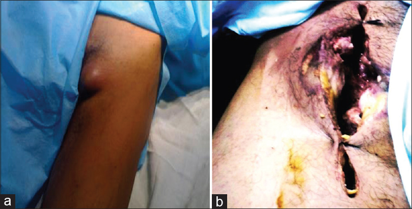 Figure 4: (a) Addict patient presented with groin mass, (b) addict patient presented with rupture infected femoral pseudoaneurysm
