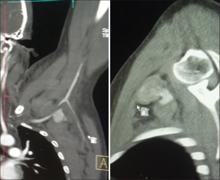 Figure 2: Computed tomography angiography showing subclavian artery pseudoaneurysm with two openings in subclavian artery anterior and posterior
