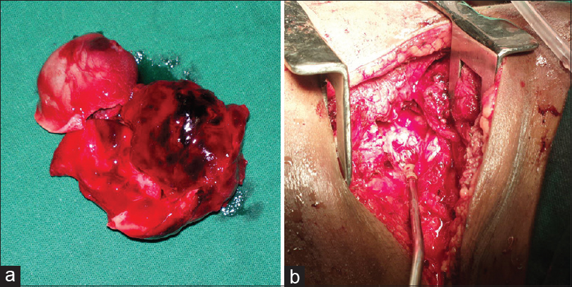 Figure 4: (a) Excised pseudoaneurysm. (b) Opening in subclavian artery closed with vein patch