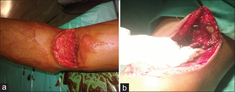 Figure 1: (a) Crush injury of the right upper limb by cutting saw. (b) Completely transected brachial artery, vein, and median nerve