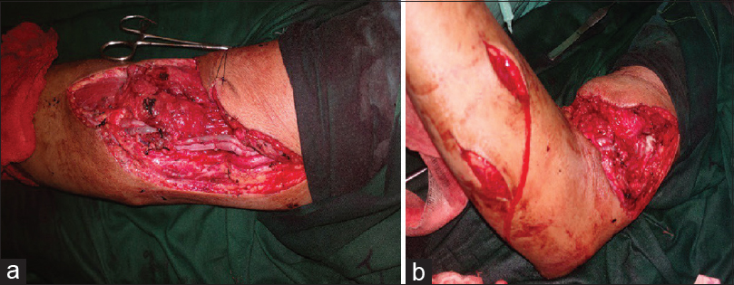 Figure 2: (a) Interposition grafting of the brachial artery, vein by saphenous vein graft and median nerve by sural nerve graft. (b) Fasciotomy of forearm to prevent compartment syndrome