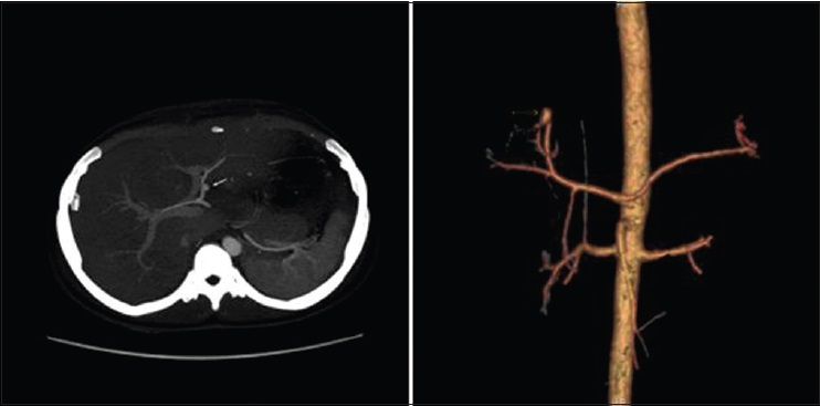 Figure 3: Arterial phase maximum intensity projection and three-dimensional reconstruction images show a small pseudoaneurysm from left hepatic artery