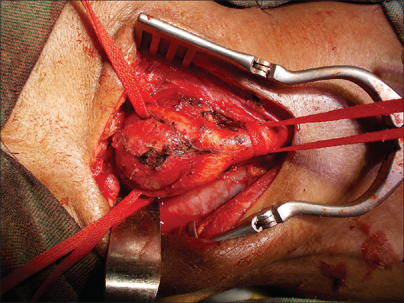 Figure 3: Intraoperative