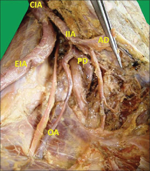 Study of Variations in the Origin of Obturator Artery Sonje PD ...