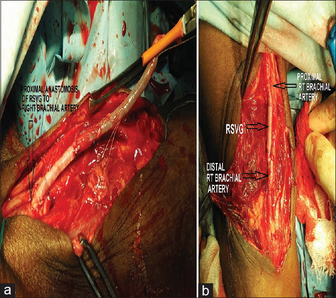 Figure 2: Intraoperative images of surgical repair of Right Brachial artery after aneurysm excision. (a) shows the proximal anastomosis of the interposition venous graft. (b) shows the completed repair with the interposition venous graft