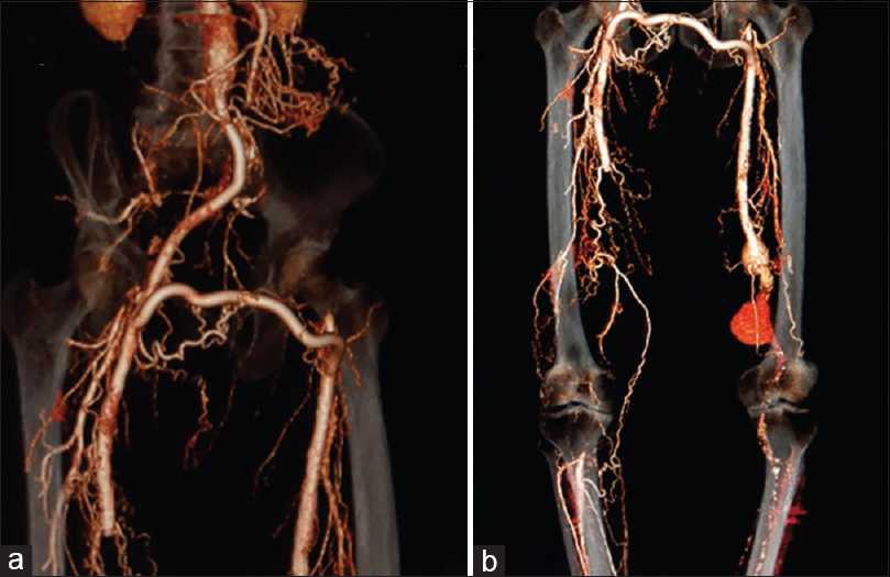 Figure 2: (a) Computed tomography angiogram showing patent aortoright femoral and femorofemoral bypass (b) computed tomography angiogram done after popliteal artery interruption for ruptured right popliteal artery aneurysm, safeguarding the deep genicular artery to sustain collateral flow. Small intact left superficial femoral artery and popliteal artery aneurysms visualized at that time