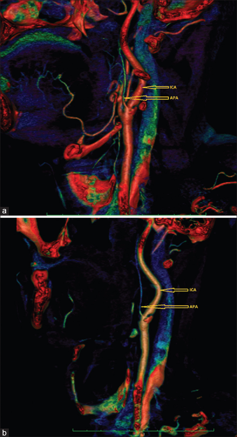 Figure 1: Volume-rendered reconstruction images of the right carotid artery. (a) Sagittal and (b) curved volume-rendered images showing the origin of ascending pharyngeal artery from proximal internal carotid artery