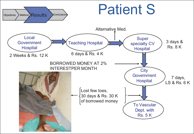 Figure 2: Trials (and tribulations) of a patient with CLI/CLTI; these patients become nomadic as they as are shunted from one health-care facility to another