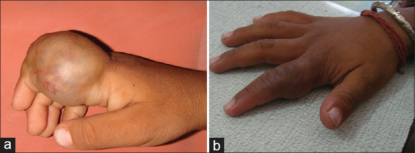 Figure 16: (a) Venous malformation of index finger (b) Good regression in venous malformation after 3 sessions of sclerotherapy using 1.5% polidocanol as foam sclerosant