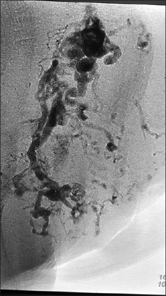 Figure 19: Radio-opaque cast of glue + lipiodol in arteriovenous malformation nidus of the foot