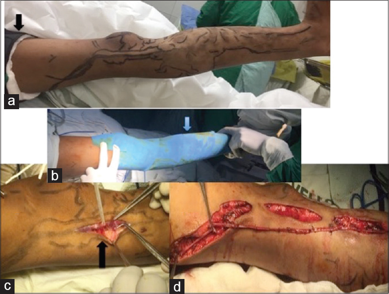 Figure 7: Intraoperative picture of surgical excision of lateral marginal vein. (a) Marking of the lateral marginal vein. (b) Esmarch bandage applied. (c) lateral marginal vein. (d) Step incisions to excise the lateral marginal vein