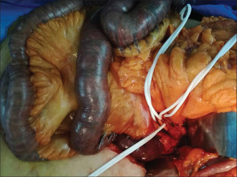 Figure 4: Intraoperative image showing the intestinal ischemia before embolectomy