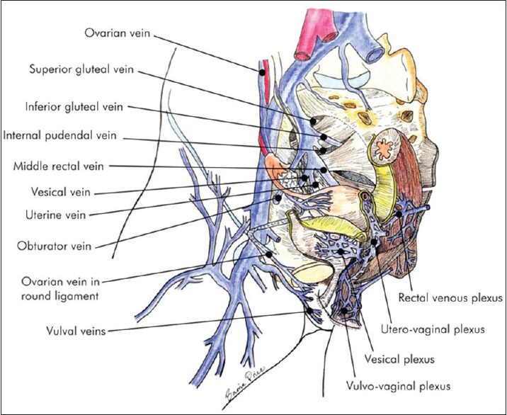 Figure 13: Anatomical diagram, distal pelvic veins. Credit: Barrie Price, The Whiteley Clinic