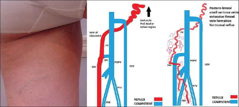 Figure 32: Posterior leg varices arising from pelvic source with typical small-scale posterior varicose veins. Several representations of reflux patterns are demonstrated