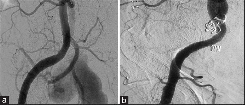 Figure 2: Angiographic demonstration of preangioembolization (a) and postangioembolization (b) views of the right internal iliac artery