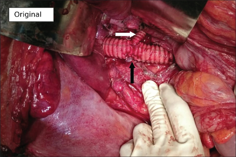 Figure 3: Inferior vena cava reconstructed with 14 mm coated polyester graft; right renal vein reimplanted (black arrow) and 8 mm coated polyester graft (white arrow) to left renal vein (as a cuff of vein was removed with the tumour)