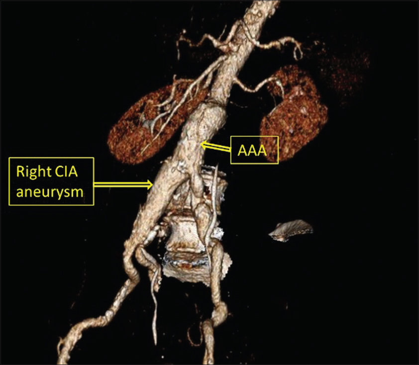 Figure 2: Abdominal aortic aneurysm associated with the right common iliac artery aneurysm. The access to the bifurcation of the right iliac artery will be difficult in RP approach due to the right lateral position of the patient, therefore, unsuitable for RP approach