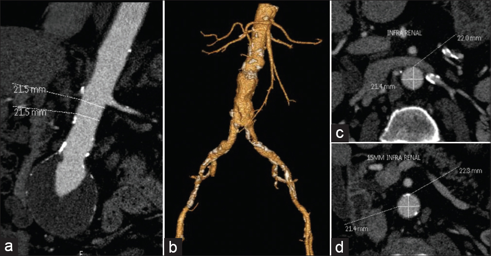 Figure 5: (a-d) Ideal neck for endovascular aneurysm repair