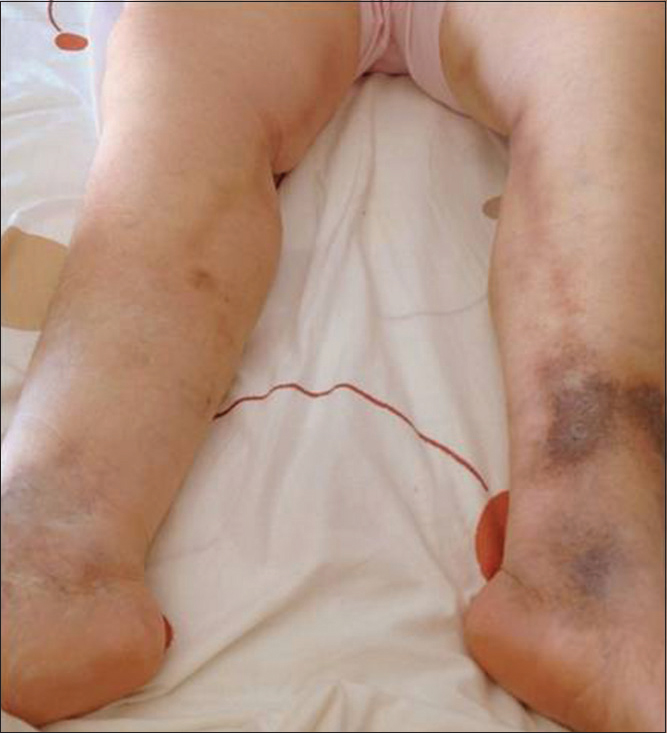 Figure 1: Photograph of a patient with a superficial vein thrombosis of bilateral viridans group <i>Streptococcus</i>, note the inflammatory red lead into the path of saphenous veins