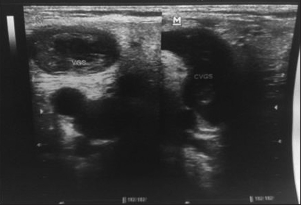 Figure 5: Venous Doppler echo of the left leg objectifying complete thrombosis of the trunk of the viridans group <i>Streptococcus</i> and the extension of superficial venous thrombosis to the saphenofemoral junction