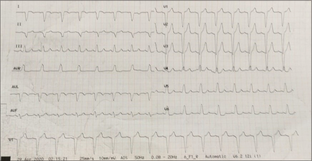 Figure 1: 12-lead electrocardiogram showing sinus rhythm and broad QRS complex