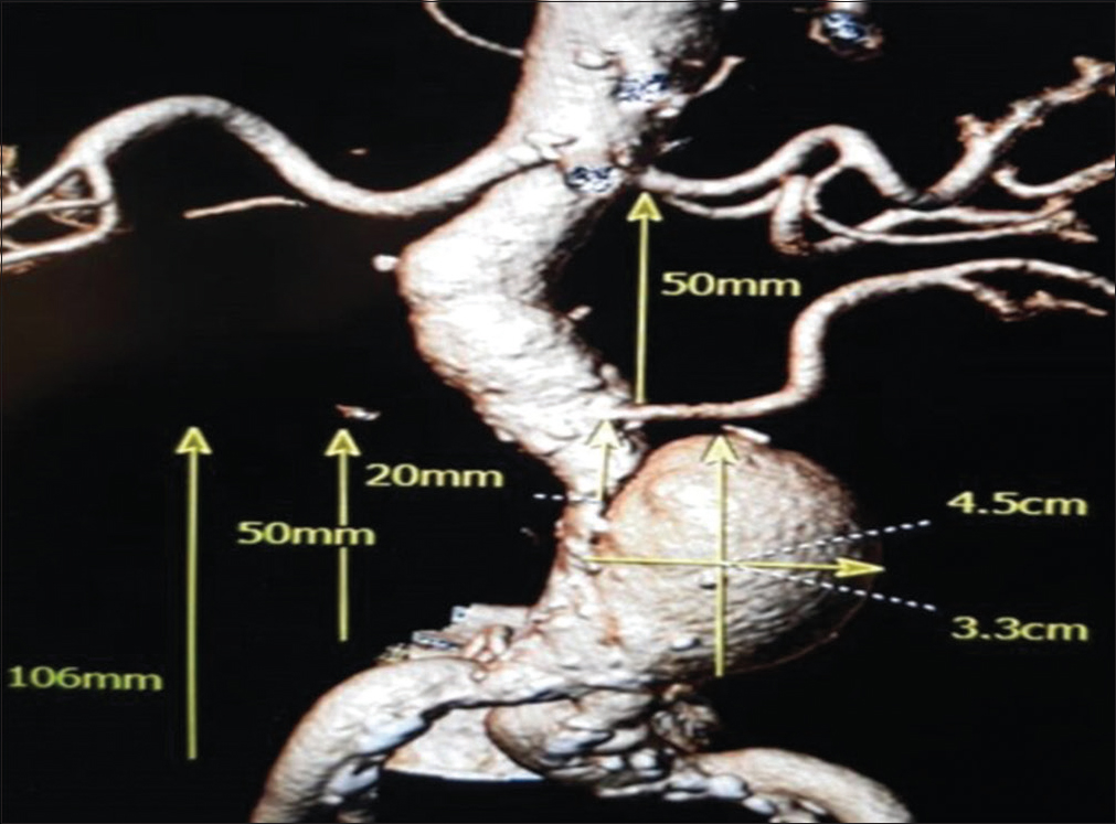 Figure 2: Infrarenal saccular abdominal aortic aneurysm with measurements