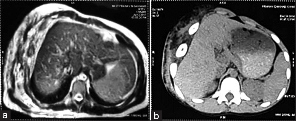 Figure 3: (a and b) Preoperative magnetic resonance imaging chest wall