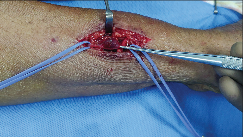 Figure 3: Peroperative picture showing glomus tumor of the left cephalic vein
