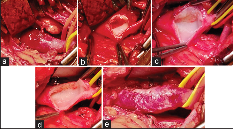 Figure 5: (a) Large poststenotic dilatation of the subclavian artery. (b) Arteriotomy along the edge of the plaque showing the thrombus adherent to the plaque in the posteroinferior wall. (c) Arterial wall after thrombointimectomy. (d) For tailoring, only the plaque is excised saving the normal wall. (e) Arteriotomy closed after tailoring. Normal diameter achieved