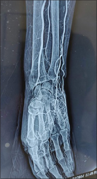 Figure 8: Palpable pulse but symptomatic due to small vessel occlusion. Angiogram shows that radial artery is occluded at wrist and multiple digital arteries are blocked
